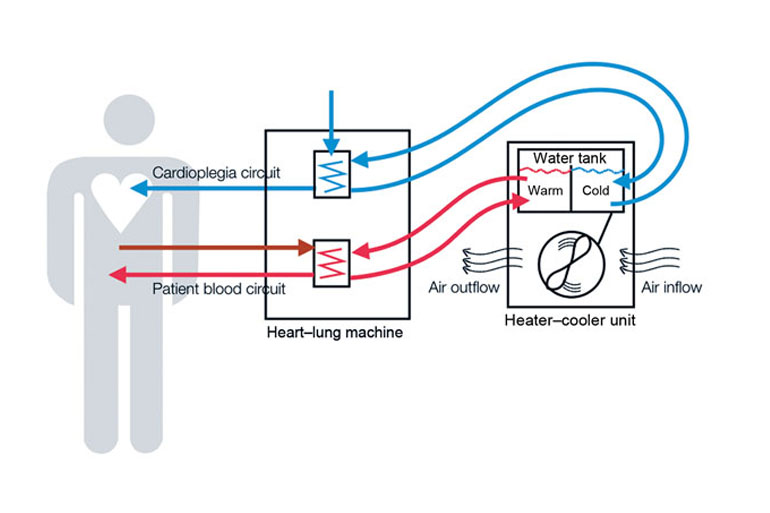 Schematic representation of heater–cooler circuits tested for transmission of Mycobacterium chimaera during cardiac surgery despite an ultraclean air ventilation system. Blue arrows indicate cold water flow, and red arrows indicate hot water flow and patient blood flow. (Courtesy of CDC)